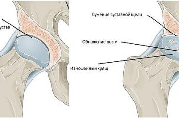 Как лечить остеохондроз коленного и тазобедренного суставов?