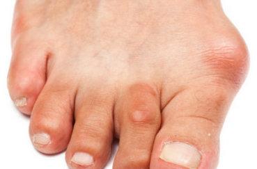 Как лечить артрит большого пальца стопы?