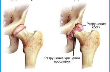 Сравнение здорового и больного артритом сустава