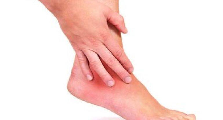 Как лечить боли в голеностопном суставе?