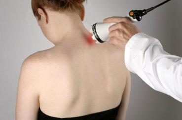 Лечение остеохондроза лазером
