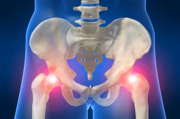 Лечим боли в тазобедренных суставах: чем и как?