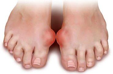 Как снять боль и полностью вылечить артроз стопы?