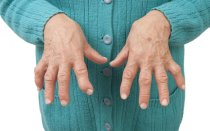 Как побороть артрит: эффективные методы и профилактика