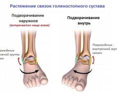 Способы как можно подвернуть ногу