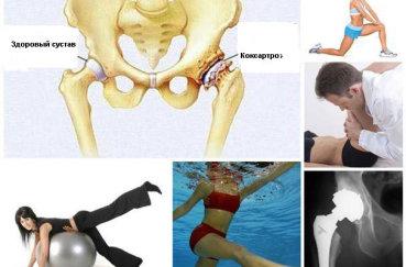 Гимнастические правила и упражнения при артрозе тазобедренного…