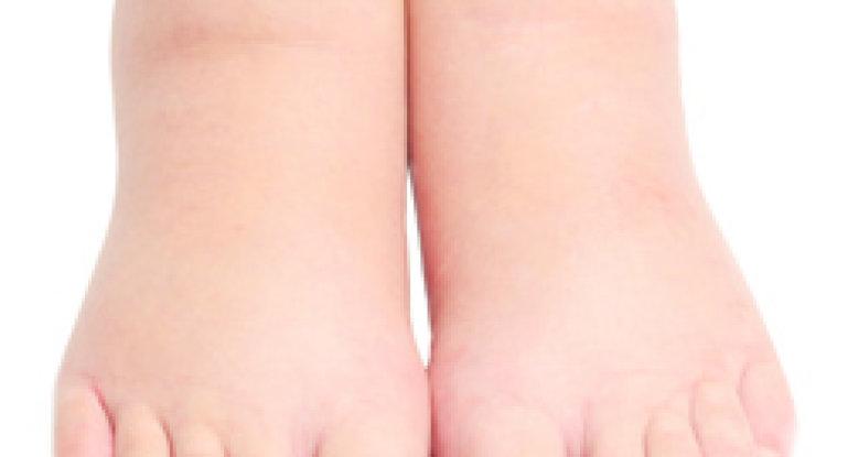 Почему болят и опухают ноги от колена до стопы?