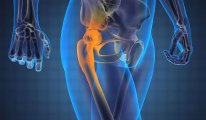 Как лечить растяжения и разрывы связок…