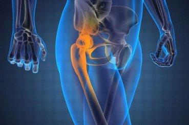 Как лечить растяжения и разрывы связок тазобедренного сустава?