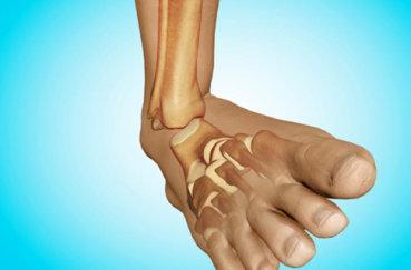 Что делать при вывихе стопы: симптомы и лечение