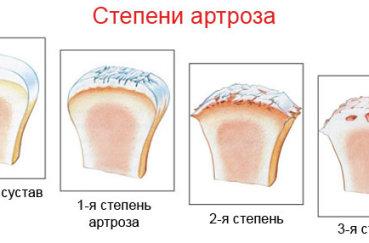 Что характерно для первой и второй степени артроза?