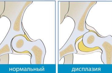 Клинические признаки дисплазии тазобедренного сустава у взрослых