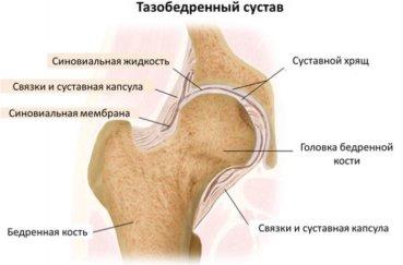 Почему возникают боли в тазобедренном суставе?
