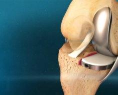 Эндопротез в колене
