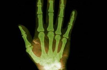 Травмы кисти: что делать при переломе?