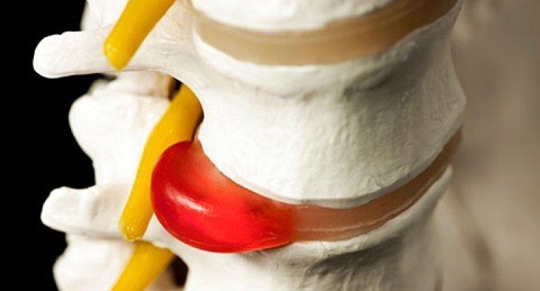 Медикаментозное лечение межпозвоночной грыжи