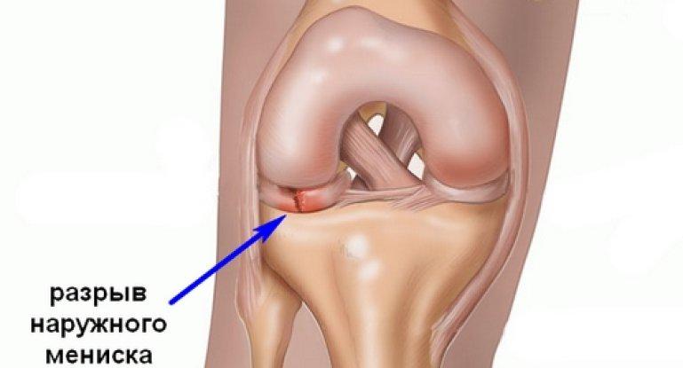 Как лечить разрыв мениска коленного сустава?