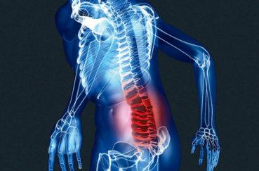 Анатомия пояснично-крестцового отдела позвоночника
