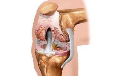 Что такое артропатия коленного сустава и как она лечится?