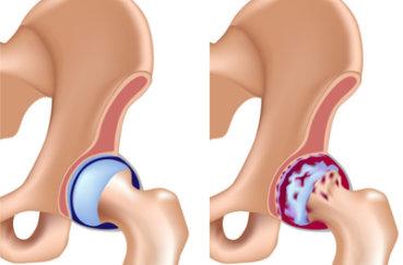 Инвалидность при коксартрозе тазобедренного сустава: 4 степени…