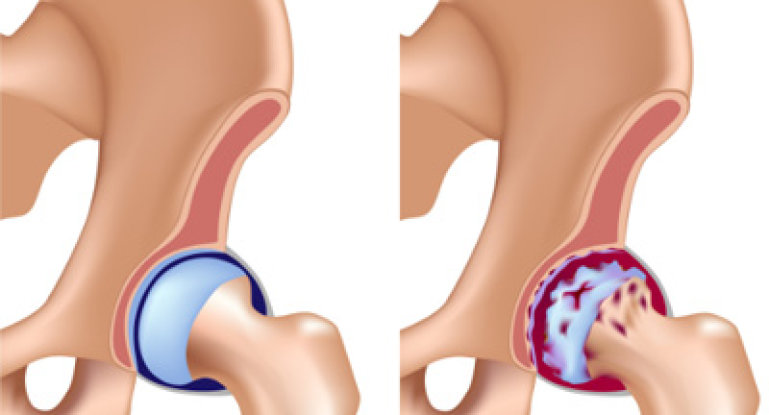 Инвалидность при коксартрозе тазобедренного сустава: 4 степени поражения