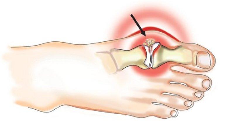 Проводим медикаментозное лечение подагры на пальце ноги