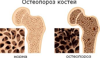 Народная медицина в борьбе с остеопорозом костей