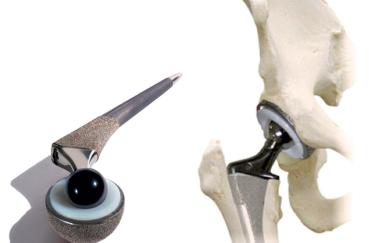 Вид эндопротеза в кости