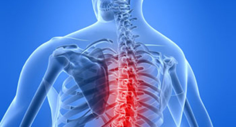 Что такое остеохондроз и неврология: симптомы, причины, лечение