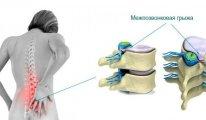 Как проходит лечение грыжи позвоночника…