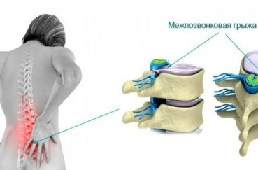 Как проходит лечение грыжи позвоночника лазером?