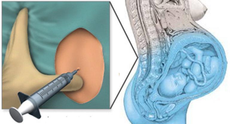 После эпидуральной анестезии болит спина: почему?