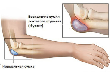 Как вылечить бурсит локтевого сустава народными средствами какие суставы болят при подагре