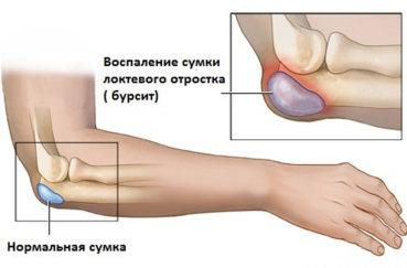Что такое бурсит локтевого сустава и как его лечить?