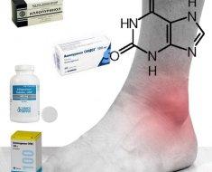 Лечение подагры различными средствами
