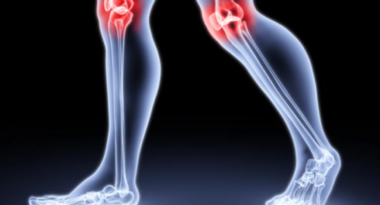 Артроз и артрит — что это, их различия и лечение
