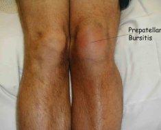 Хронический бурсит колена