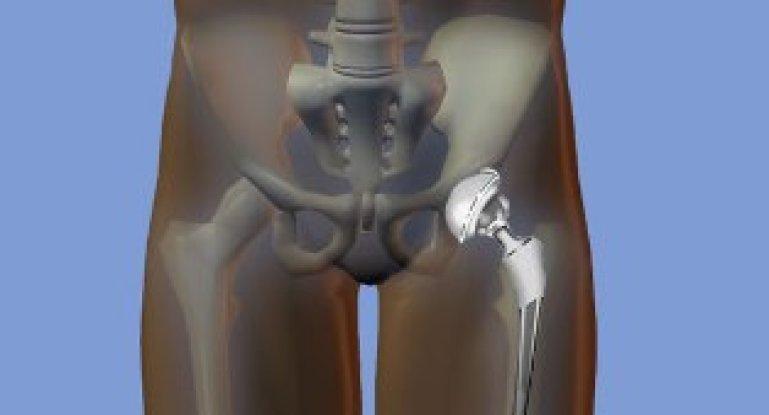 Изображение - Осложнения после операции на тазобедренном суставе a8afab46ef3a9ce_769x415