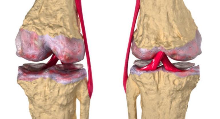 Как диагностируется и лечится артроз коленного сустава?