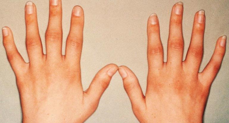 Как лечить суставы пальцев рук от болезней?
