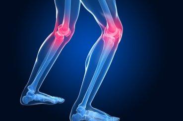 Как лечить остеопороз коленных суставов?