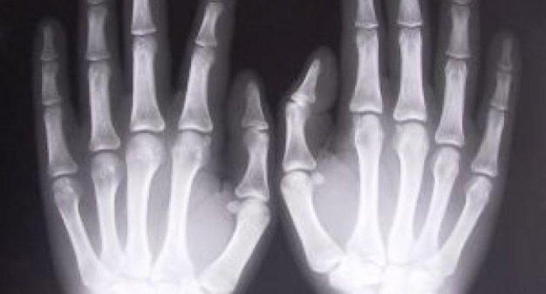 Как делают рентген кисти и всей руки?