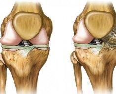 Вид костей при гонартрозе