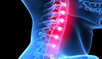 Как определить и вылечить хондроз шейного отдела позвоночника?