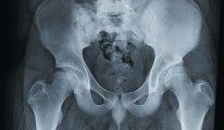 Подготовка и проведение рентгена…