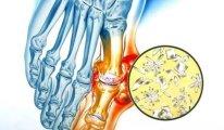 Какие симптомы полиартрита суставов и как…