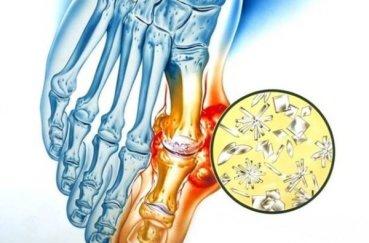 Какие симптомы полиартрита суставов и как его лечить
