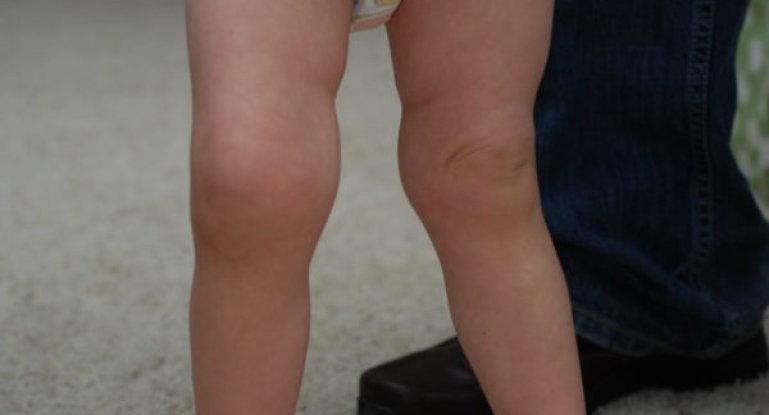 Как лечить реактивный артрит у детей?