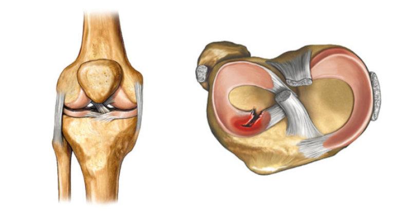 Что собой представляет мениск коленного сустава?