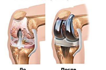 Тотальное эндопротезирование колена